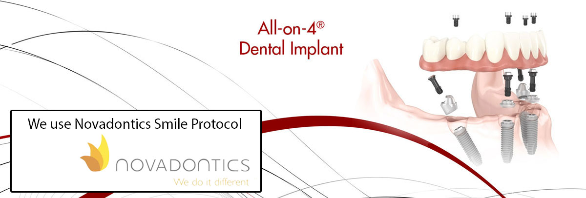 Glendale All-on-4 Dental Implants