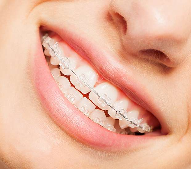 Glendale Invisible Orthodontics