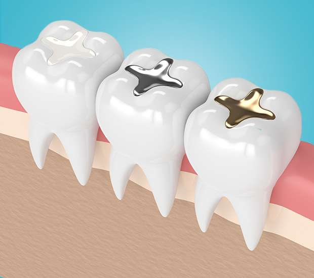 Glendale Tooth Colored Fillings