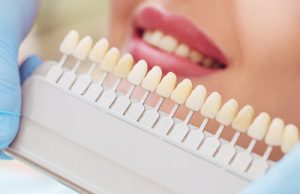 Should You Get Dental Veneers Or Lumineers?