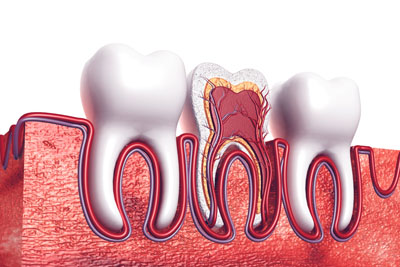A Root Canal Dentist In Glendale: Explaining The Basics Of A Root Canal