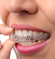 Clear Aligners - Almost Invisible Braces Glendale, CA