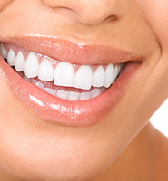 Teeth Whitening Services Glendale, CA